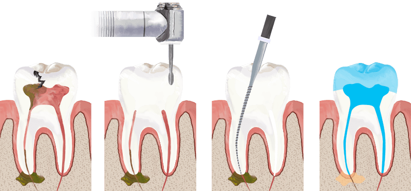 root canal therapy procedure pdf